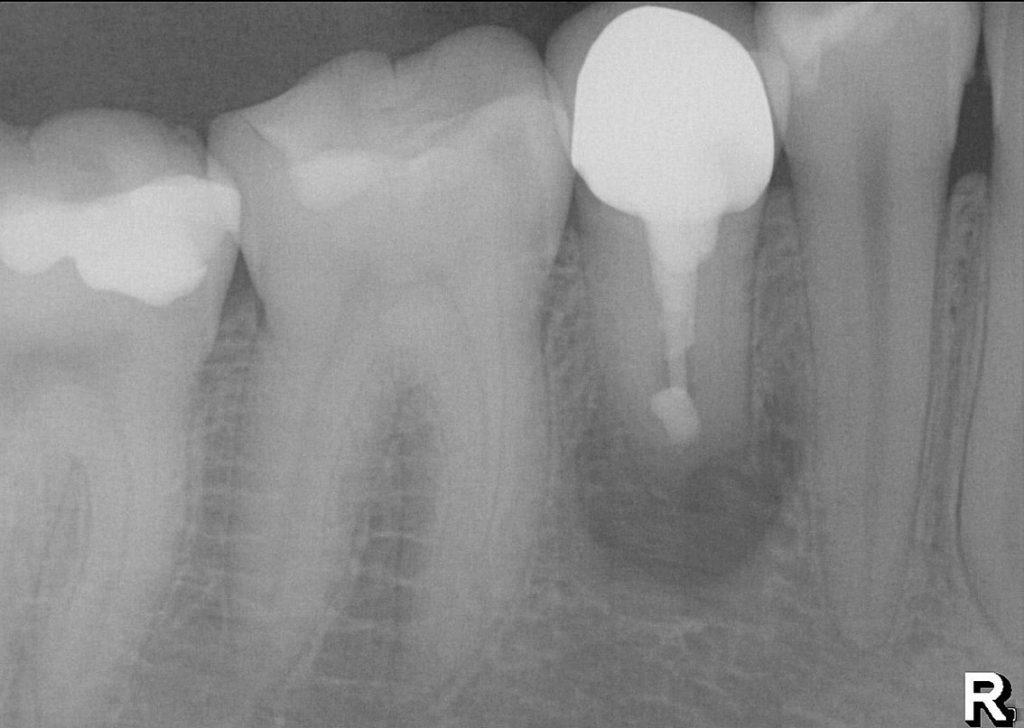 Röntgenbild: Wurzelspitzenresektion