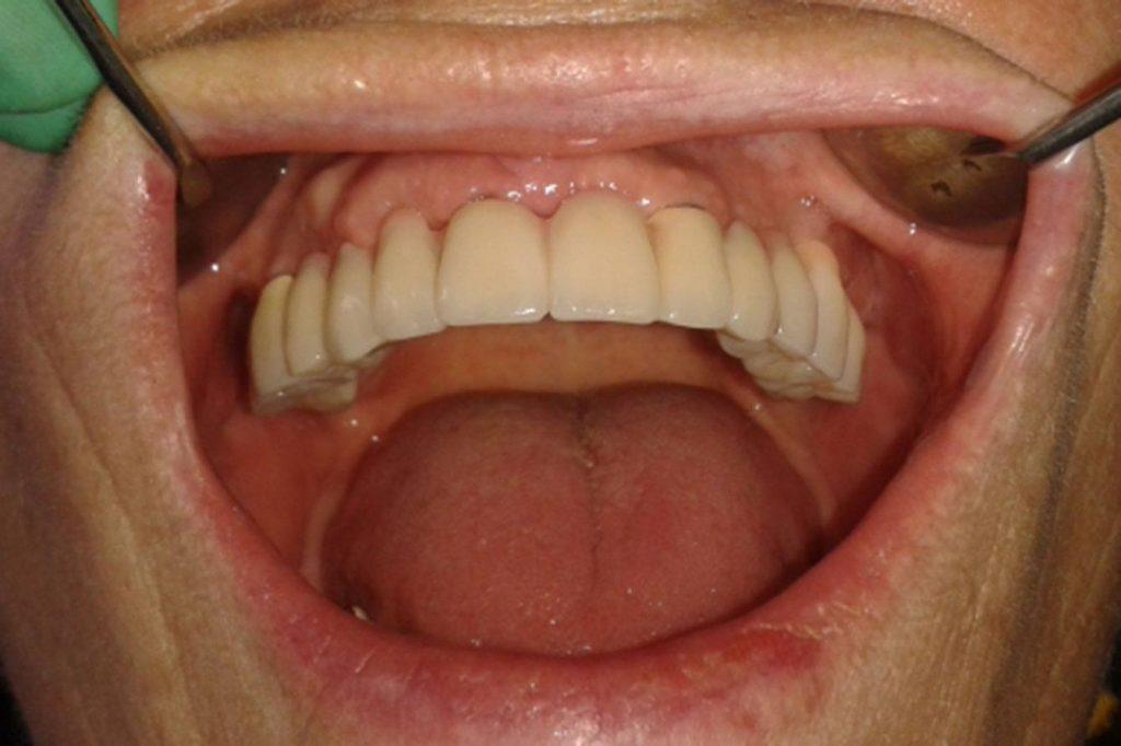 oralchirurgie berlin all on 4 op