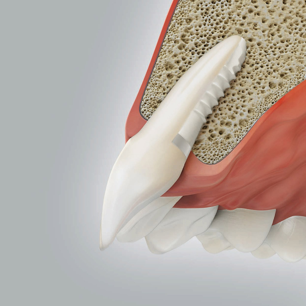 Keramik-Implantate, Foto: Camlog